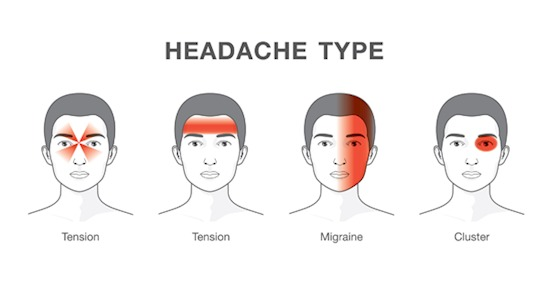 How To Tell If Your Headache Is Deadly