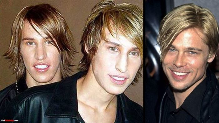 10 Epic Fails Of Fans Who Had Cosmetic Surgery To Look Like Their Favorite Star