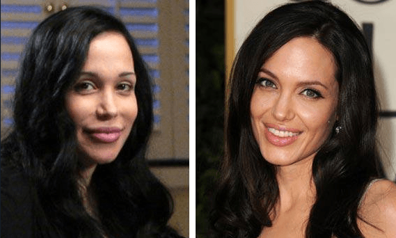 Young Woman Got 50 Surgeries To Look Like Angelina Jolie!