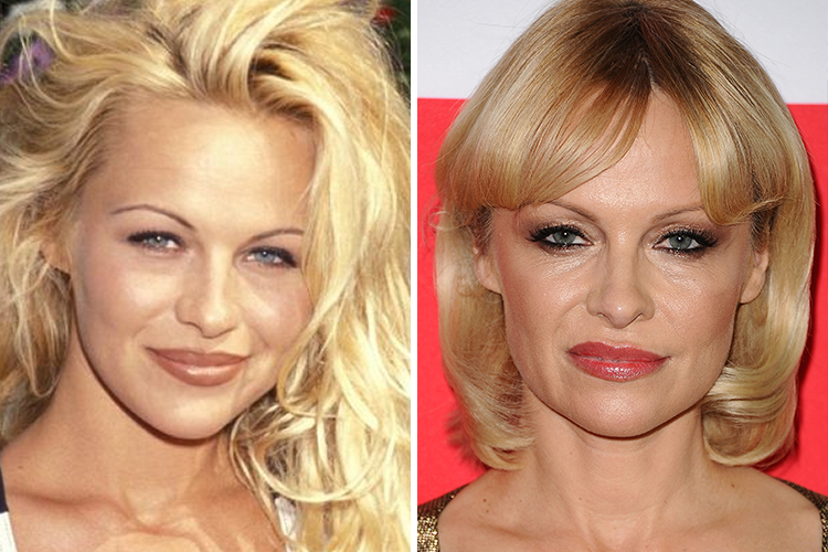 12 Celebrity Plastic Surgeries You Probably Are Not Aware Of