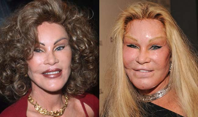 The Worst Celebrity Plastic Surgery Disasters